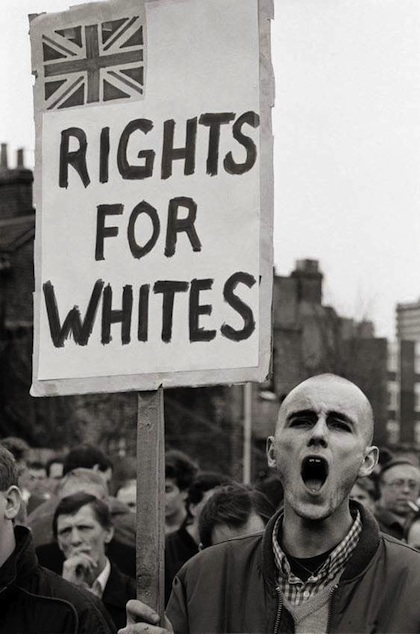 rights for whites