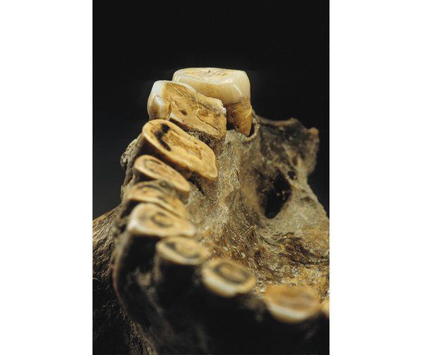 kennewick jaw